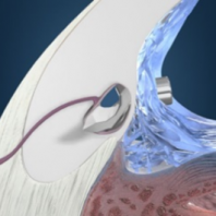 Glaucoma I-stent – an exciting advancement for the management of glaucoma
