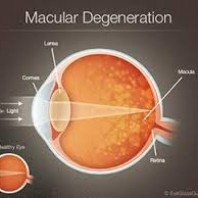 What is age-related macular degeneration (AMD)?